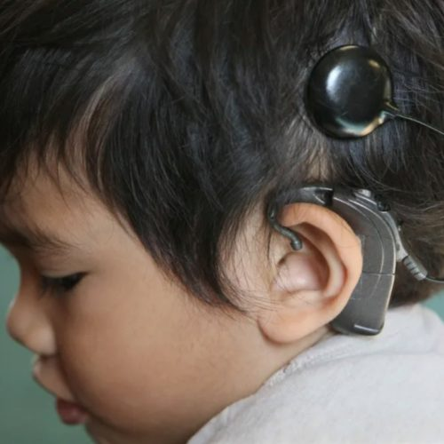 Cochlear Implants: As Miraculous As They Say?